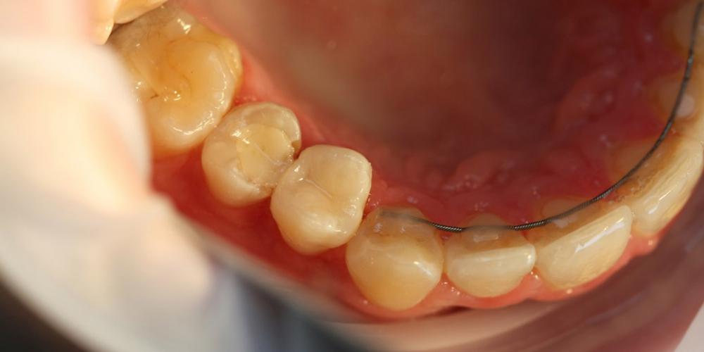 Реставрация зуба 1.4 с использованием современных композитных материалов