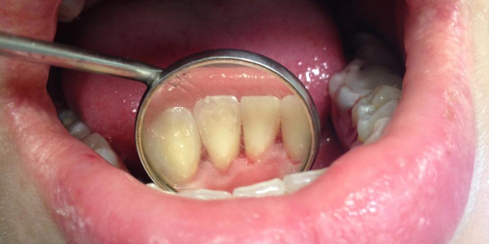 Жалобы на наличие зубных отложений и кровоточивость десен