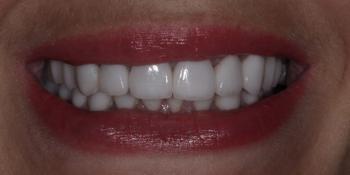 Комплексная реабилитация зубочелюстной системы керамическими винирами и коронками фото после лечения