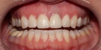 Протезирование центральных зубов верхней челюсти керамическими винирами фото после лечения
