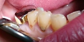 Лечение клиновидного дефекта, восстановление анатомической формы зуба фото до лечения