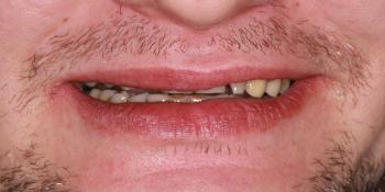 Восстановление зубов коронками из диоксида циркония фото до лечения
