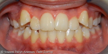 Результат ортодонтического лечения фото до лечения