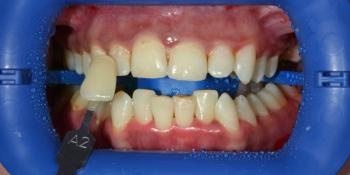 Результат проф отбеливания ZOOM-3, фото до и после фото до лечения