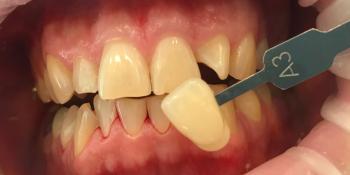 Пациент обратился с жалобами на некрасивый цвет зубов фото до лечения