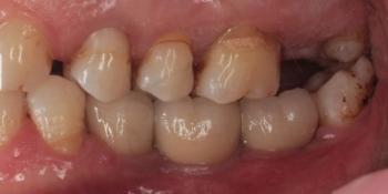 Имплантация трех зубов подряд, м/к коронки фото после лечения