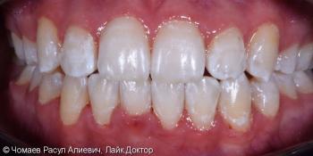 Результат ортодонтического лечения фото после лечения