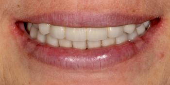 Полное восстановление верхней челюсти на 8 имплантах Астра Тек фото после лечения