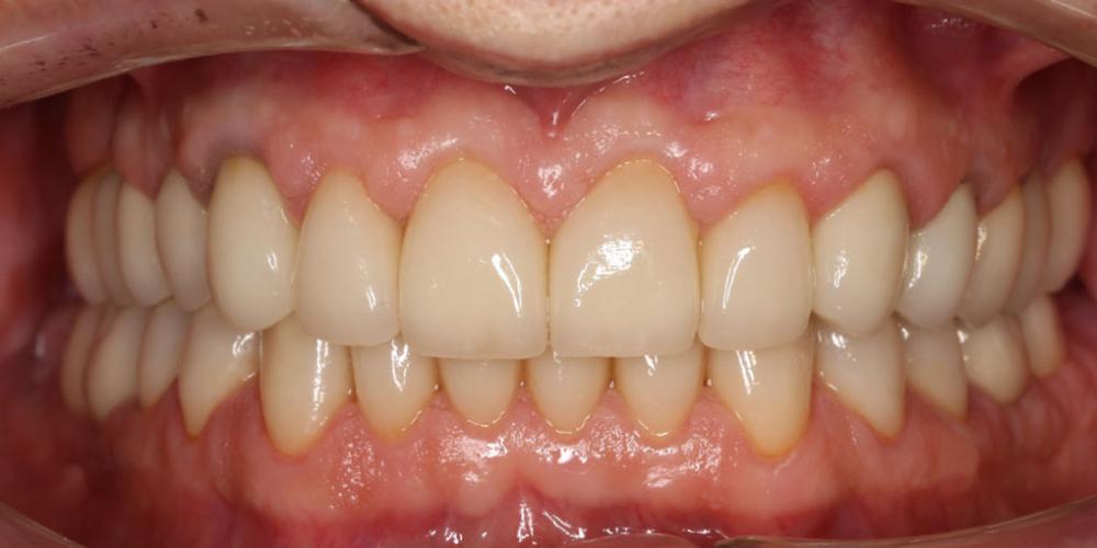Восстановление зубов коронками из диоксида циркония