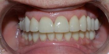 Установка 4 имплантатов для восстановления отсутствующих зубов фото после лечения