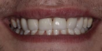Изменение формы зубов верхней челюсти, коррекция цвета, восстановление функции фото после лечения