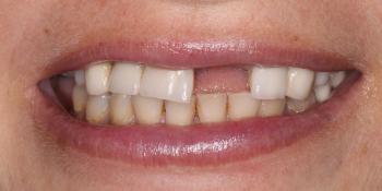 Полное восстановление верхней челюсти на 8 имплантах Астра Тек фото до лечения