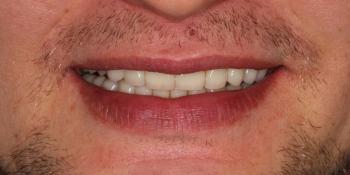 Восстановление зубов коронками из диоксида циркония фото после лечения
