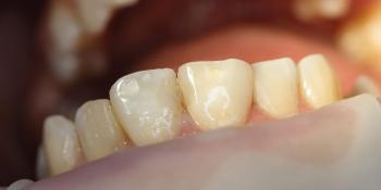 Результат лечения среднего кариеса зуба 1.1 фото после лечения