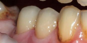 Результат лечения пришеечного кариеса зубов фото после лечения