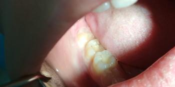 Жалобы на потемнение пломб, хронический кариес фото до лечения
