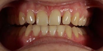 Восстановление центральных зубов верхней челюсти керамическими винирами E.max и отбеливание Zoom 3 фото до лечения