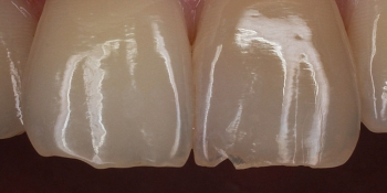 Оперативное устранения скола центрального зуба фото до лечения