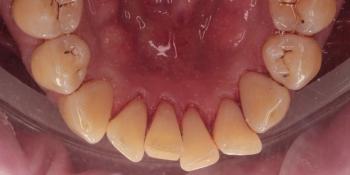 Снятие твердых зубных отложений (зубного камня) ультразвуком фото после лечения