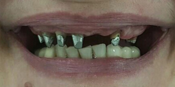 Установлен металлокерамический мостовидный протез с опорой на культевые вкладки фото до лечения