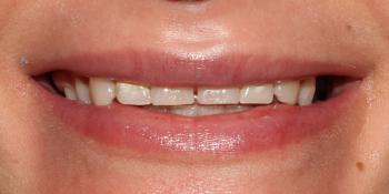 Восстановление зубов верхней челюсти керамическими винирами E.max фото до лечения