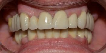 Восстановление отсутствующих зубов, эстетики и функции жевания МК коронками фото после лечения