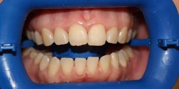 Результат отбеливания зубов с использованием системы Zoom-3 фото до лечения