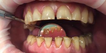 Профессиональная гигиена полости рта, результат до и после чистки фото до лечения