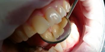 Жалоба на эстетическое несовершенство 2.1 зуба и потемнение между 1.1 и 2.1 зубами фото до лечения