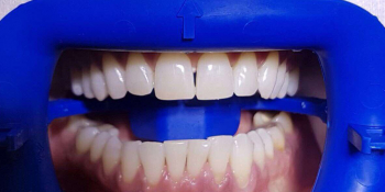 Результат отбеливания зубов ZOOM-3 фото после лечения