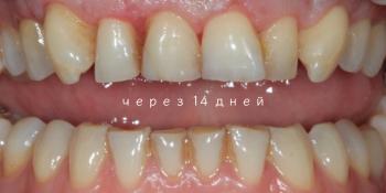 Удлинение коронковой части передних зубов фото после лечения