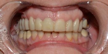 Восстановление формы и эстетики всех зубов коронками и винирами Е-max фото до лечения
