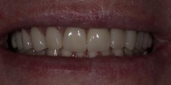 Установка 2 иплантантов Straumann и восстановление формы, функции и эстетики зубов винирами фото после лечения