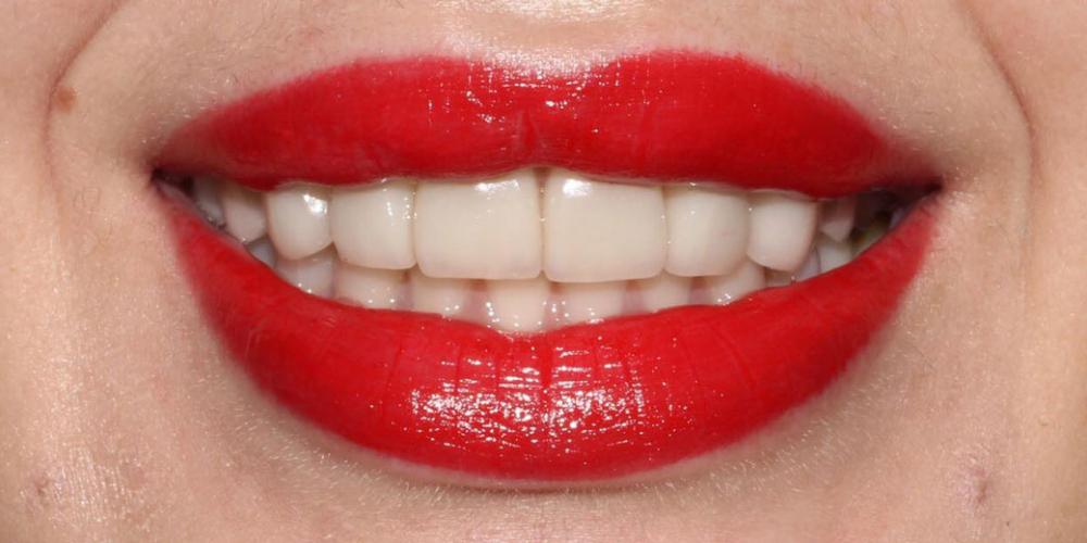 Протезирование верхних зубов керамическими коронками E.max