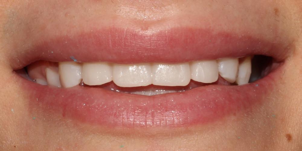 фото -временные виниры Восстановление зубов верхней челюсти керамическими винирами E.max