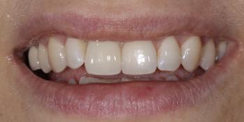 Жалоба на отсутствие переднего зуба фото после лечения
