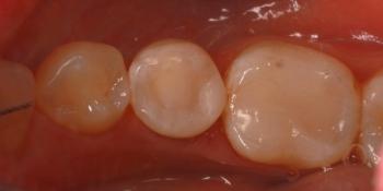 Замена пломбы 45 зуба фото после лечения