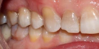 Неудовлетворительная эстетика зубов и выпадение старой металлокерамической коронки фото после лечения