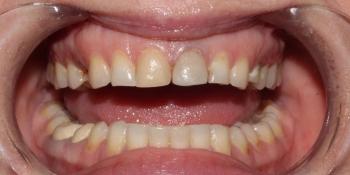 Протезирование центральных зубов верхней челюсти керамическими винирами фото до лечения