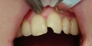 Восстановление анатомической формы 2.1 зуба материалом Estelite фото до лечения