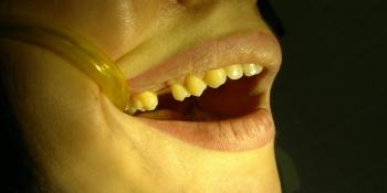 Установка имплантата в область отсутствующего зуба фото до лечения