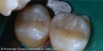 Клинический пример лечения кариеса зубов 16 и 17 фото после лечения