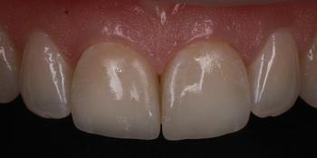Цельнокерамические виниры E-max на передние зубы фото после лечения