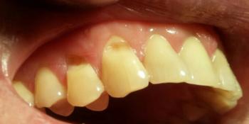 Лечение клиновидного дефекта зубов 1.3, 1.4 фото до лечения