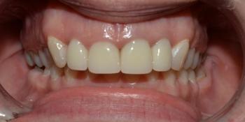 Протезирование цельнокерамическими (E.max) коронками передних зубов фото после лечения