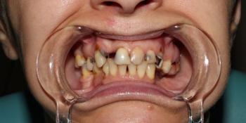Результат протезирования на верхней челюсти металлокерамическими коронками фото до лечения