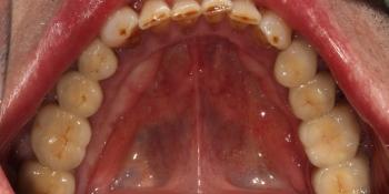 Протезирование жевательных зубов металлокерамическими коронками фото после лечения