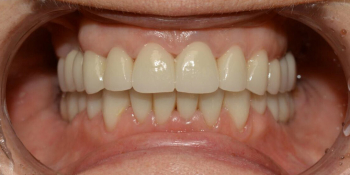 Восстановление зубов с использованием коронок на основе диоксида циркония и керамических виниров фото после лечения