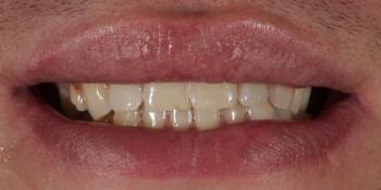 Восстановление зубов верхней и нижней челюсти керамическими винирами E.max фото до лечения