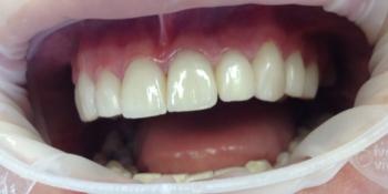 Протезирование цельнокерамическими (E.max) коронками фото после лечения
